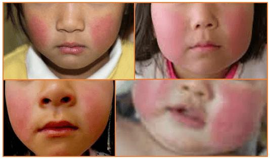 りんご病で発疹ができて頬が赤くなった子供