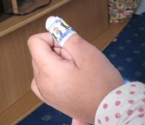 指しゃぶりをやめさせる方法 絆創膏